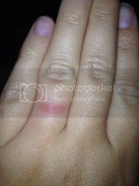 The most beautiful wedding rings: Wedding ring finger rash ...
