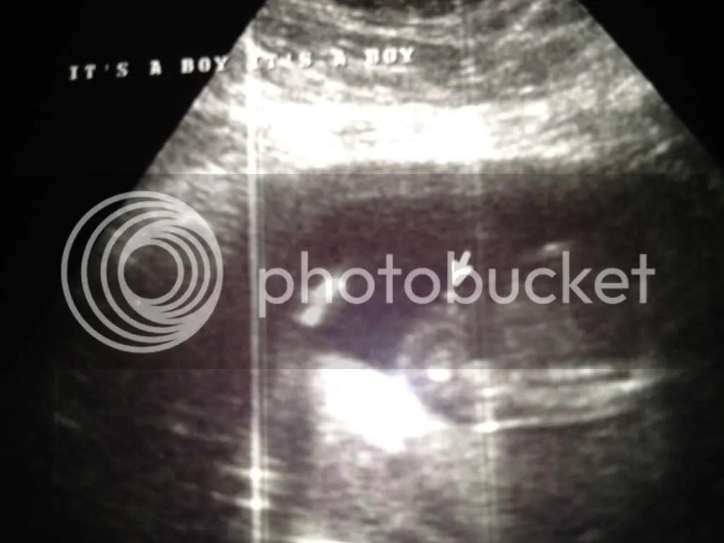 Fullsize Of 17 Week Ultrasound
