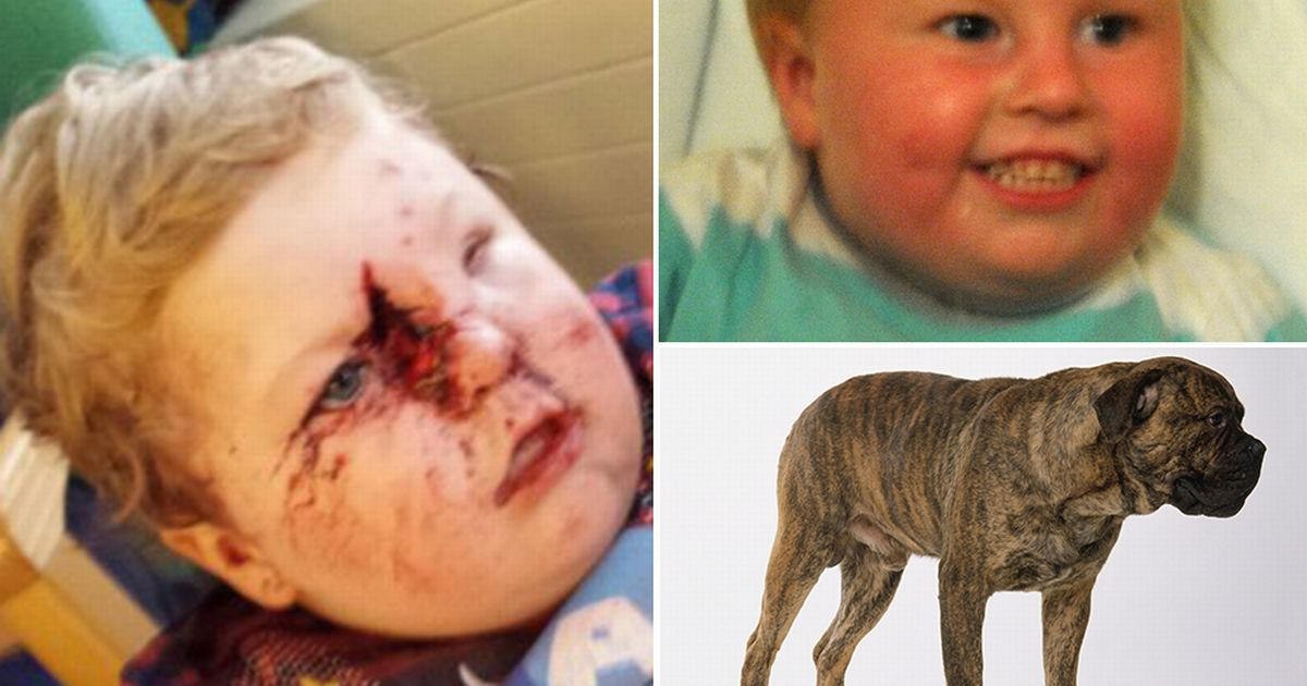 Crib Mobile Usa Toddler Savaged By Vicious Bullmastiff Has Face Rebuilt