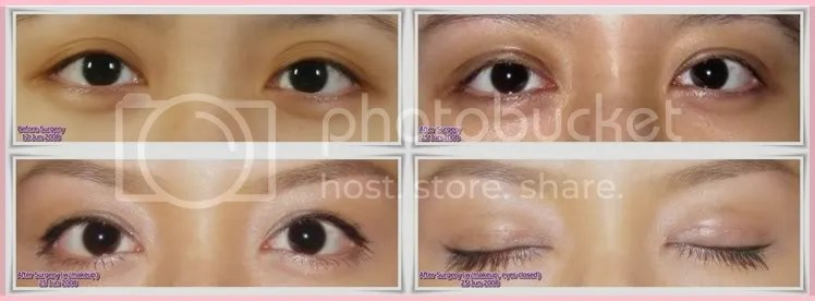 Ptosis Correction Surgery Drooping eyelids Your view? (Pics - ptosis surgery