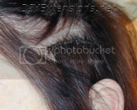 Micro Ring Hair Extensions Itchy Scalp - Prices Of Remy Hair