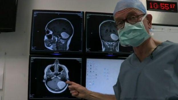 """Henry Marsh mostrando el escáner de un tumor cerebral """"probablemente benigno""""."""