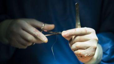 Hilo de sutura