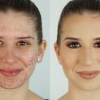 Как избавиться от прыщей на лице за 10 минут: чудеса макияжа (видео)