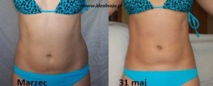 czerwiec przed i po - napiecie miesni brzucha