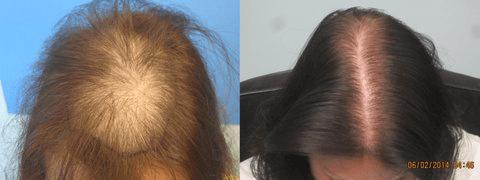 before-hair-transplant-los-angeles