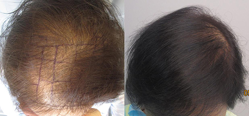 This women had 1,560 grafts placed in one session. By Dr. Sean Behnam. Left picture is before the procedure and the right picture is one year after.