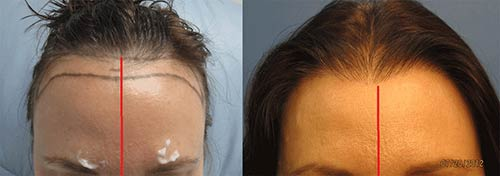 womens-hair-transplant-los-angeles