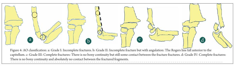 Classifications of Supracondylar Humerus Fractures: Are