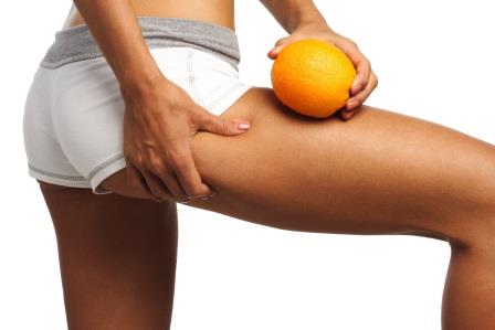 Cellulite causes and cure
