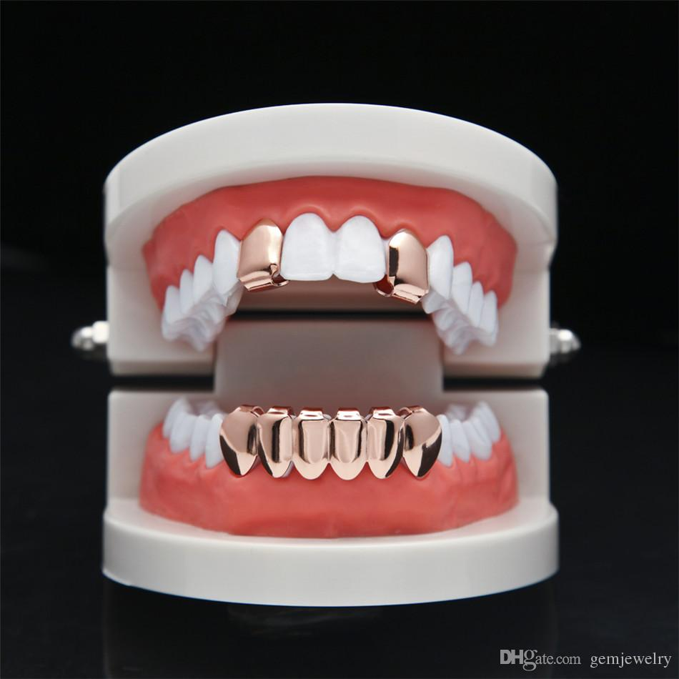 2er Set Hip Hop Rose Vergoldet Custom Mouth Grillz Set 2er Set Single Top 6 Zähne Bottom Set Gold Grills
