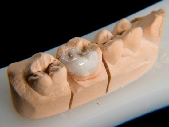 China Dental Product of Zirconia Inlay/Onlay Made in Minghao Dental
