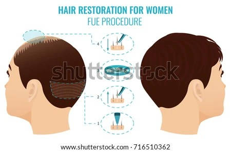 Female Hair Loss Treatment Follicular Unit Stock Illustration