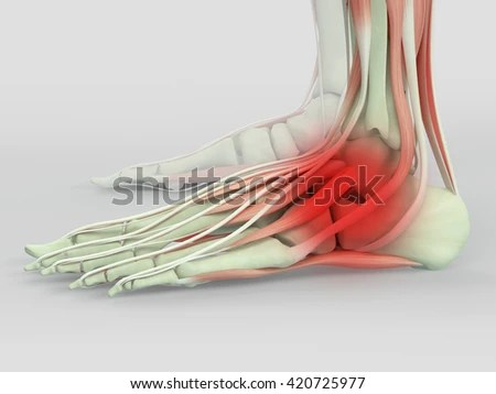 Human Anatomy Foot Injury Pain 3 D Stock Illustration - Royalty Free