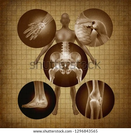 Human Painful Joints Anatomy Concept Body Stock Illustration