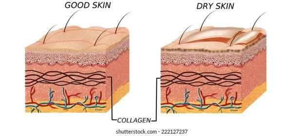 dry skin Images, Stock Photos  Vectors Shutterstock