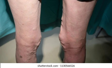 great saphenous vein Images, Stock Photos  Vectors Shutterstock