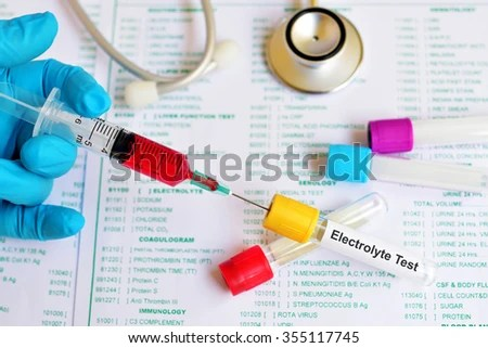 Blood Sample Electrolyte Test Stock Photo (Edit Now) 355117745