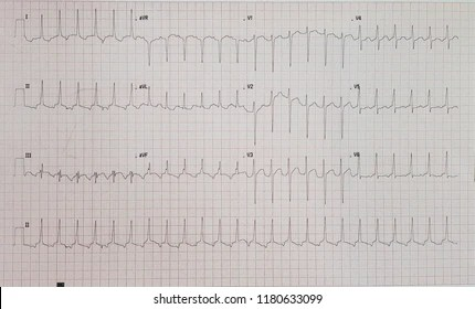 atypical avnrt Images, Stock Photos  Vectors Shutterstock
