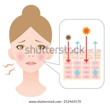 Diagram Dry Skininfographic Skin Illustration Stock Vector (Royalty