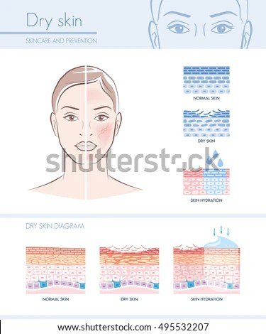 Dry Skin Hydration Infographic Skin Diagram Stock Vector (Royalty