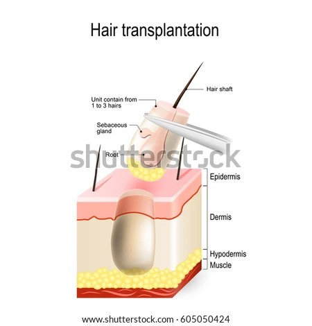 Hair Transplantation Follicular Unit Hair Loss Stock Vector (Royalty