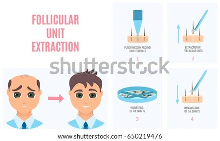 Male Hair Loss Treatment Follicular Unit Stock Vector (Royalty Free