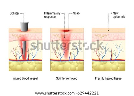 Skin Splinter Wound Healing Process Body Stock Vector (Royalty Free