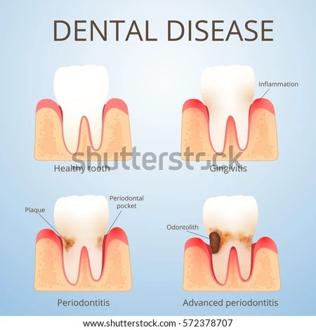 Structure Human Teeth Development Dental Disease Stock Vector