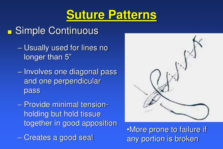 PPT - Wound Healing and Suture Knowledge PowerPoint Presentation