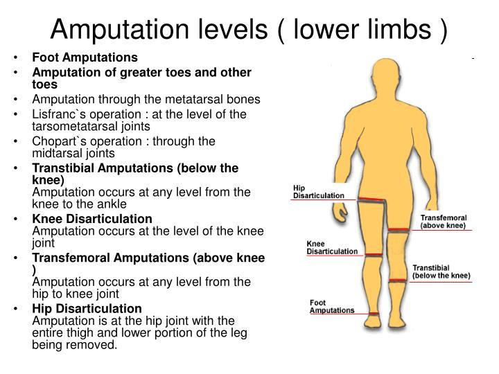 PPT - AMPUTATION PowerPoint Presentation - ID708250