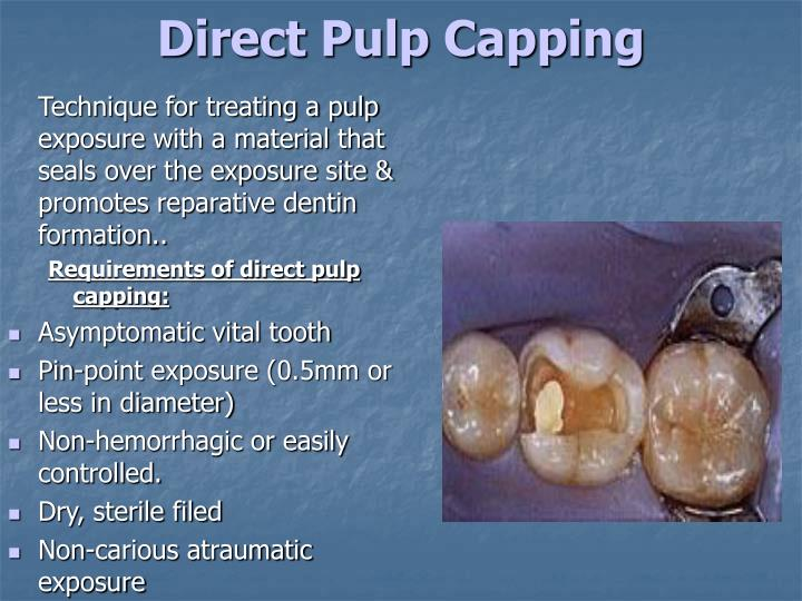 direct pulp capping - Barcaselphee