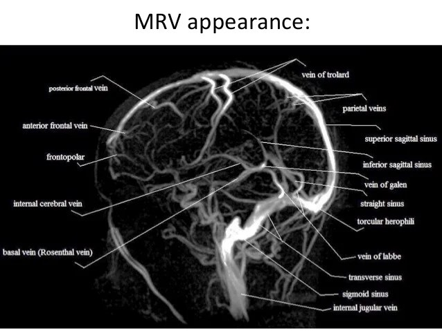 Girl Wallpaper Longitudinal Inferior Sagittal Sinus Mrv Engenharia E Thepix Info