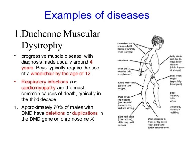 Duchenne Muscular Dystrophy Cardiomyopathy Modes Of Inheritance