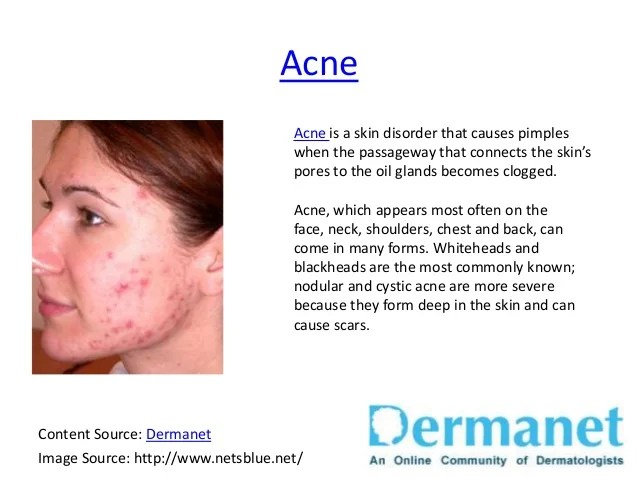 Common Skin Diseases Brought To You By Dermanet