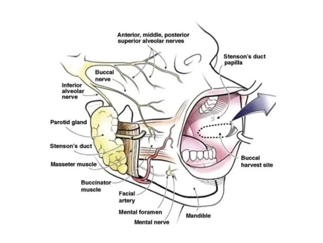 Carcinoma Buccal Mucosa Anatomy To Management