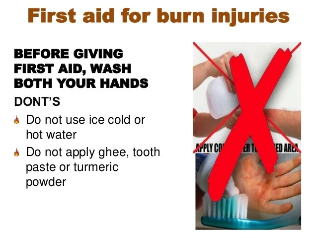 Fire Safety And Burn Prevention