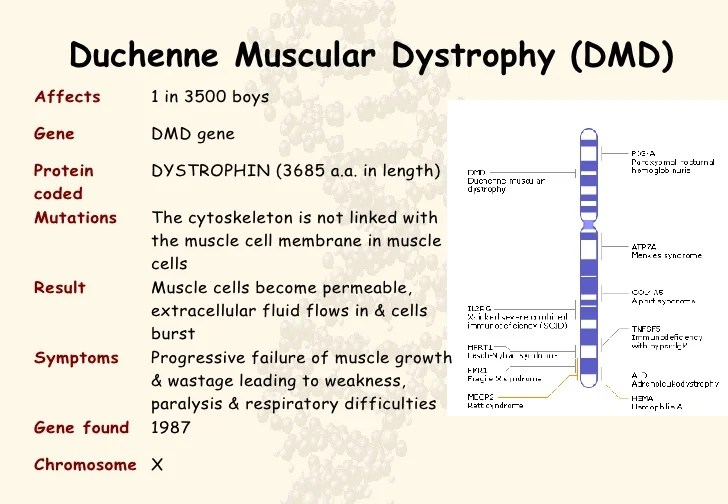 Duchenne Muscular Dystrophy Gene Discovery Human Therapeutics