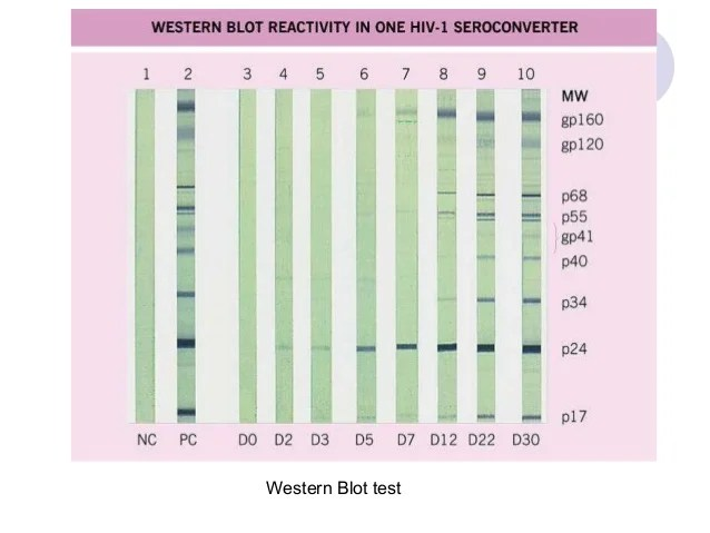 Western Blot Overview Of Western Blotting Thermo Fisher Scientific Laboratory Diagnosis Of Hiv