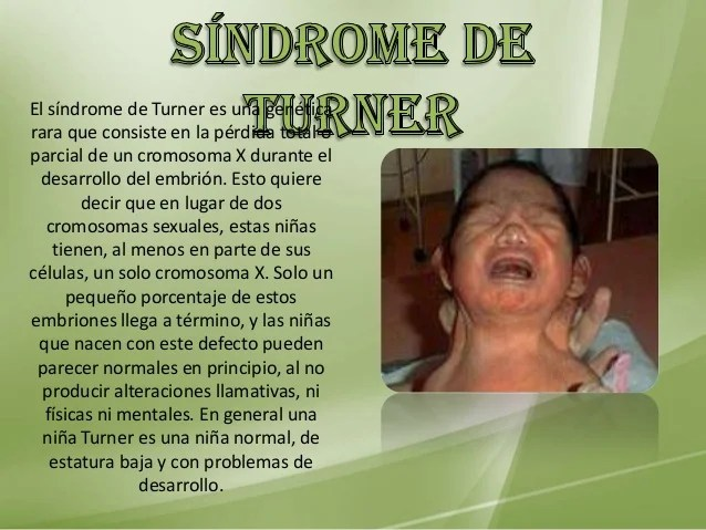 Embrion De Cinco Meses Sindrome De Turner