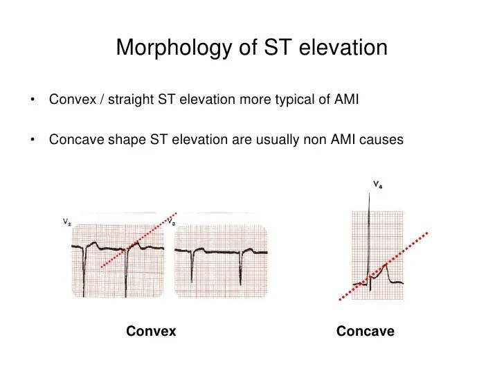Morphology Of St Elevation Convex Straight St Elevation More Typical