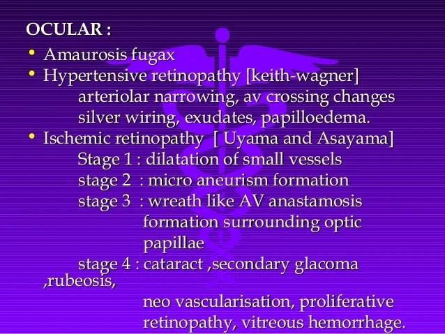 hypertensive retinopathy silver wiring ocular manifestations of