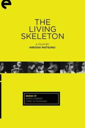 Image The Living Skeleton