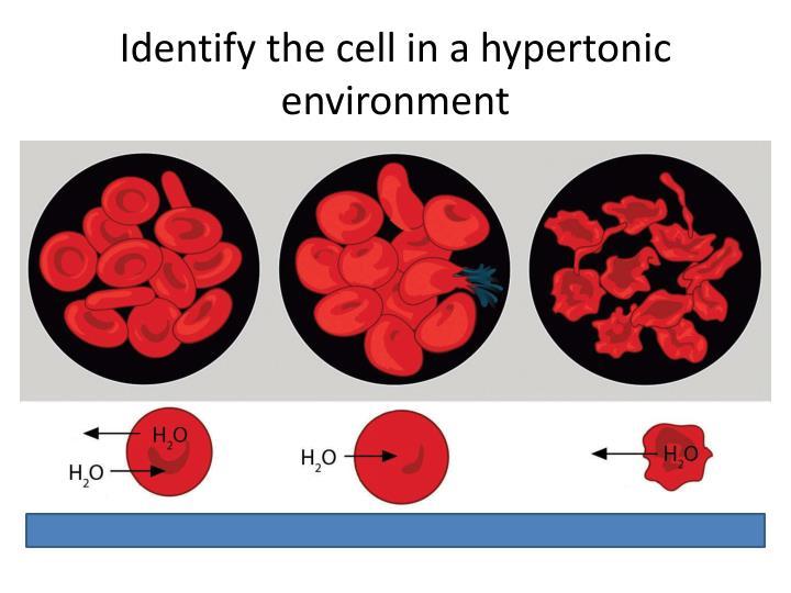 PPT - Hypertonic vs Hypotonic PowerPoint Presentation - ID1974033
