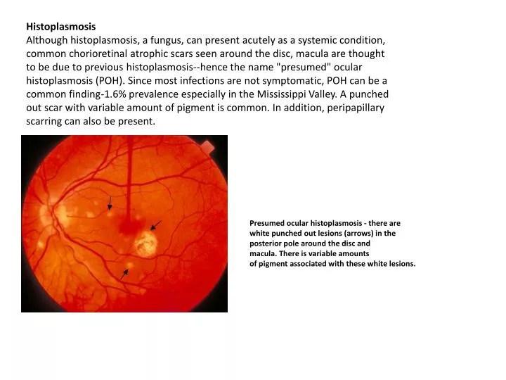 Presumed Ocular Histoplasmosis towelbars