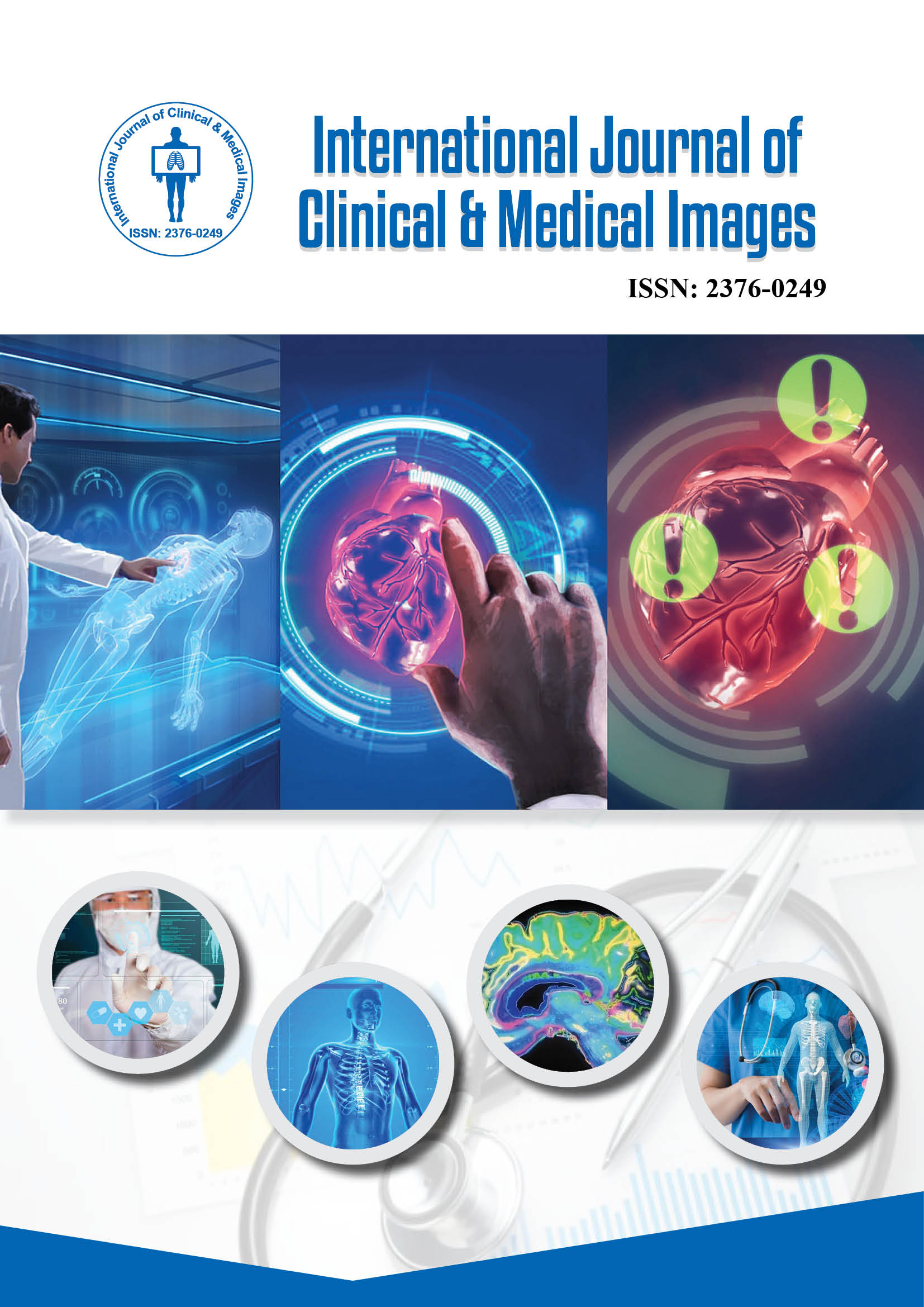 Journal Of Clinical Dermatology International Journal Of Clinical Medical Images