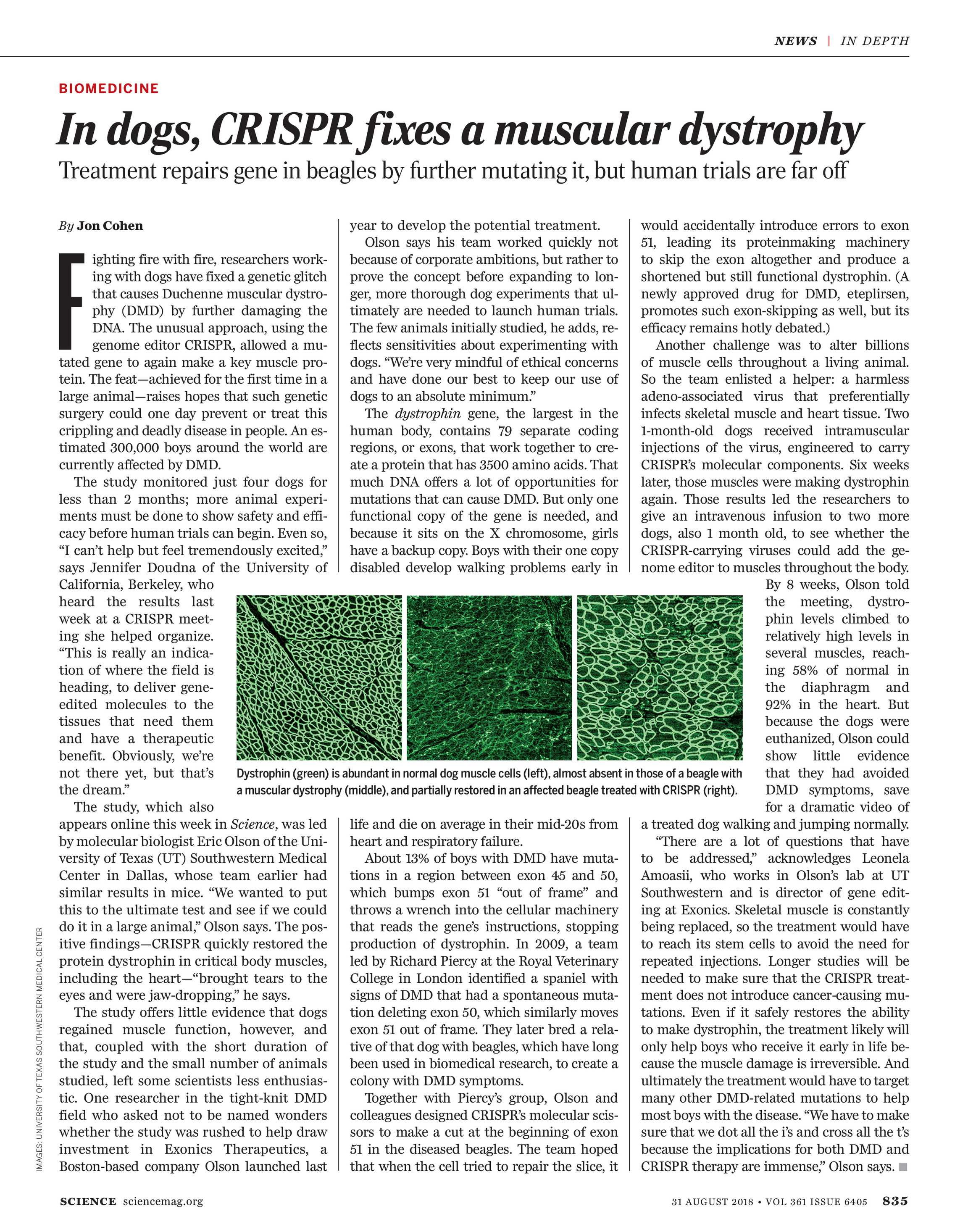 Duchenne Muscular Dystrophy Nih Science Magazine August 31 2018 Page 835