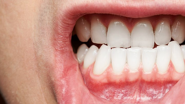 What You Need to Know About Gum Disease Everyday Health