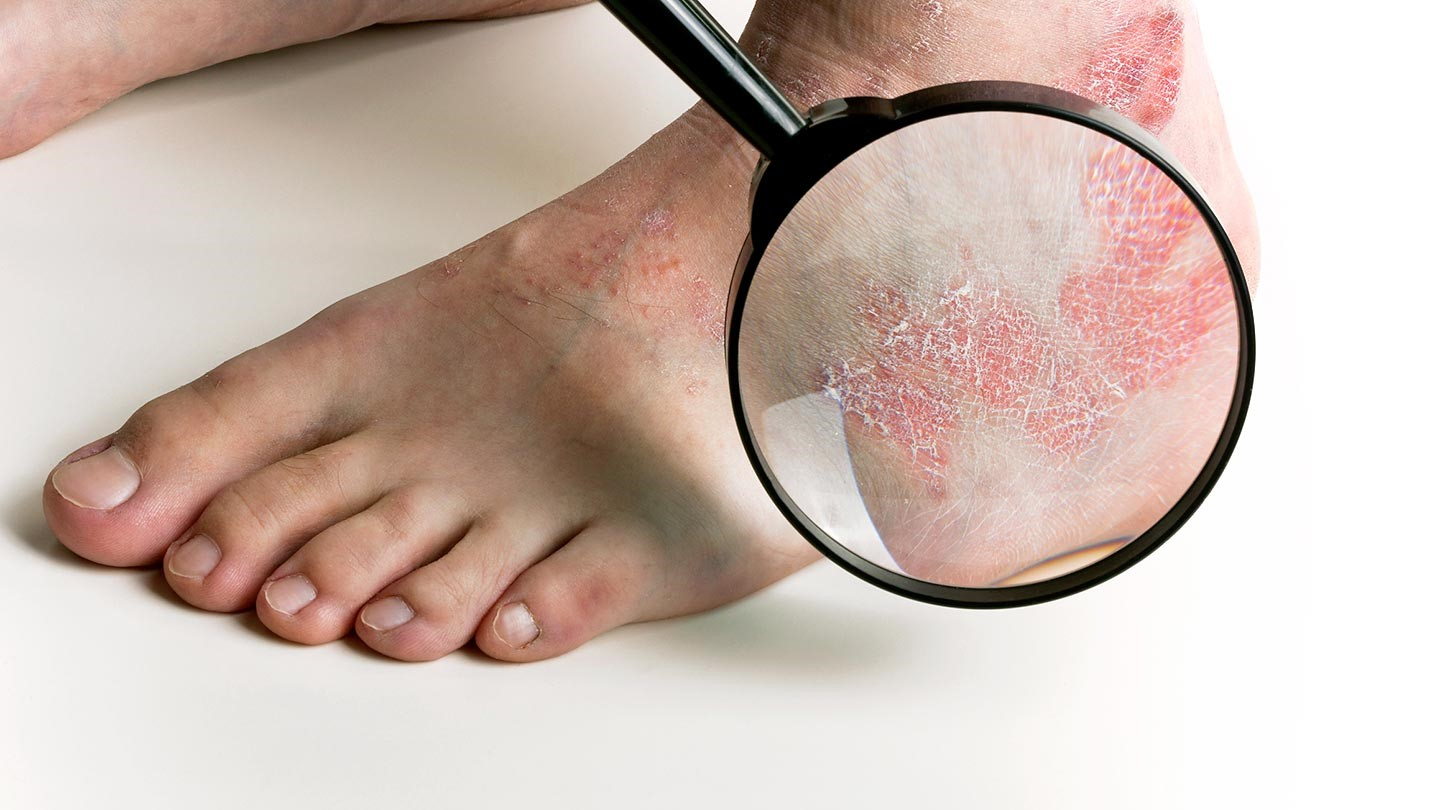 Psoriasis On Your Feet Psoriasis Everyday Health