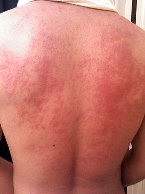 Are HIVes And Shingles Related 3